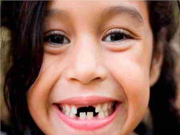 Lý giải giấc mơ thấy gãy răng và những con số liên quan